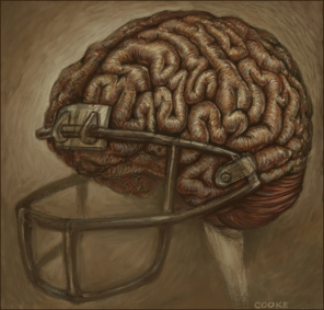 Concussions sport